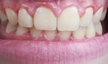 Gingivitis……. Do you Have it?