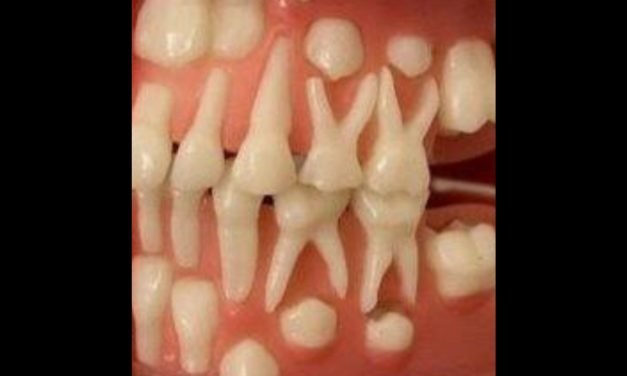 Baby teeth that won't fall out