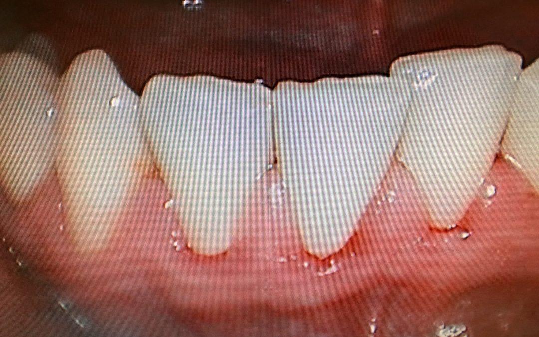 Gingivitis- Cause- Symptoms-Prevention