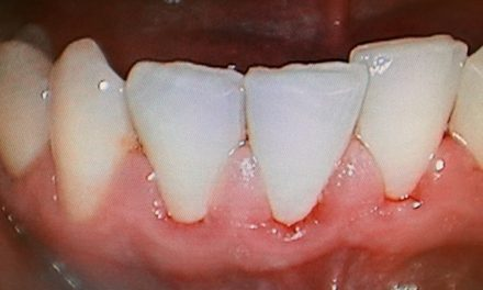 Gingivitis- Cause- Symptoms-Prevention